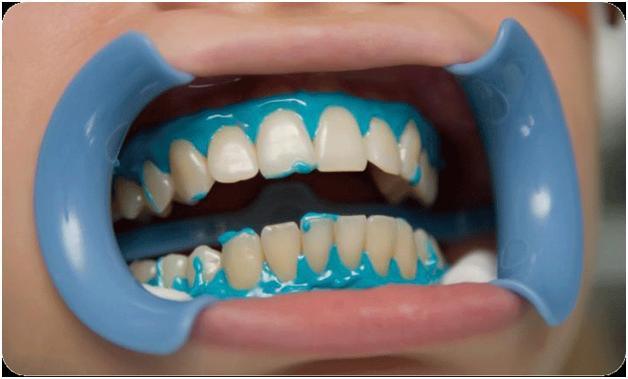 Сода отбеливающая зубы